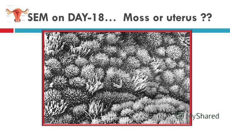 SEM on DAY-18… Moss or uterus ??