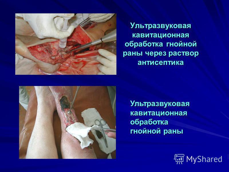 Ультразвуковая кавитационная обработка гнойной раны через раствор антисептика Ультразвуковая кавитационная обработка гнойной раны