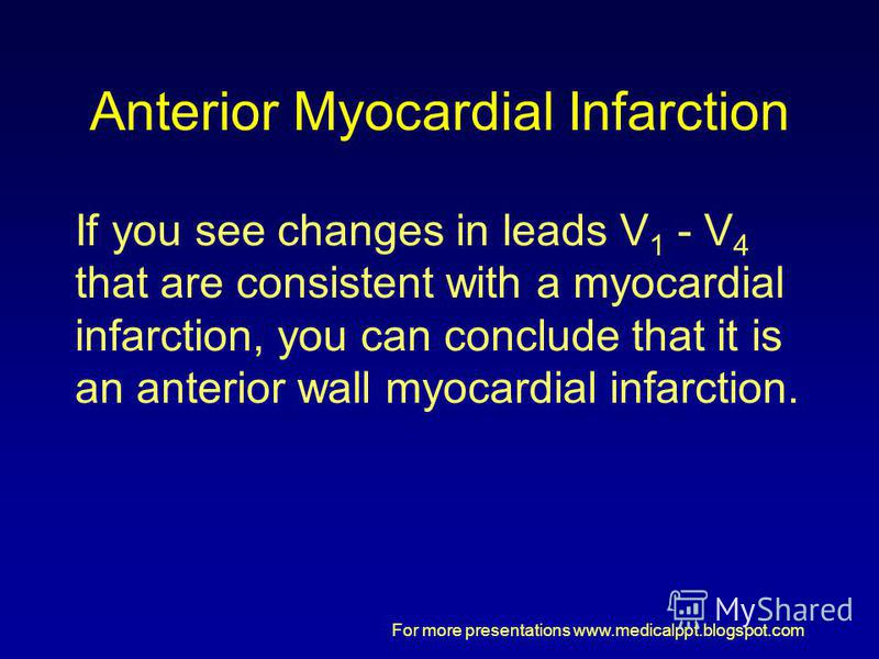 For more presentations www.medicalppt.blogspot.com Anterior Myocardial Infarction If you see changes in leads V 1 - V 4 that are consistent with a myocardial infarction, you can conclude that it is an anterior wall myocardial infarction.