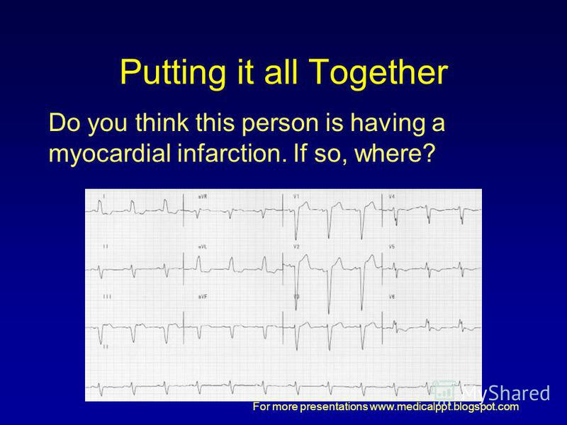 For more presentations www.medicalppt.blogspot.com Putting it all Together Do you think this person is having a myocardial infarction. If so, where?