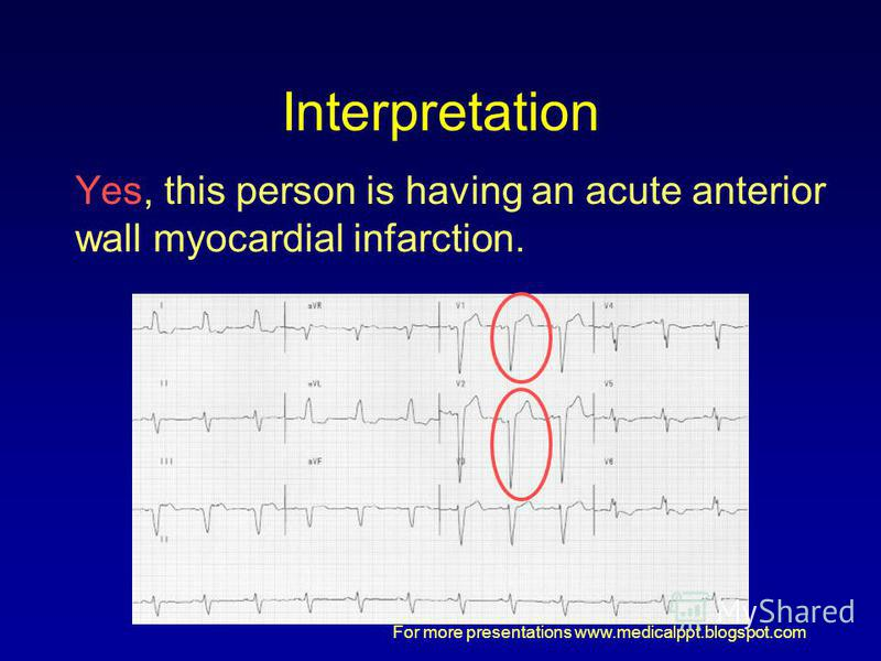 For more presentations www.medicalppt.blogspot.com Interpretation Yes, this person is having an acute anterior wall myocardial infarction.