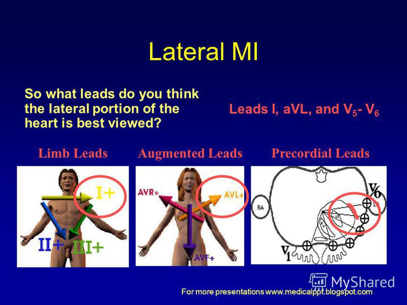 For more presentations www.medicalppt.blogspot.com Lateral MI So what leads do you think the lateral portion of the heart is best viewed? Limb LeadsAugmented LeadsPrecordial Leads Leads I, aVL, and V 5 - V 6