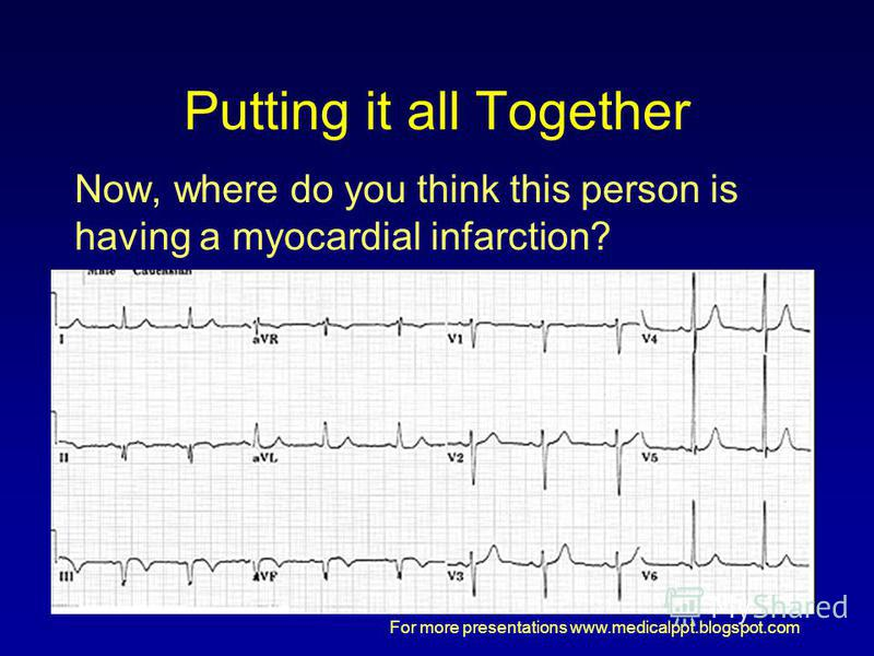For more presentations www.medicalppt.blogspot.com Putting it all Together Now, where do you think this person is having a myocardial infarction?