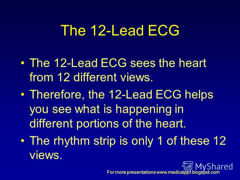 For more presentations www.medicalppt.blogspot.com The 12-Lead ECG The 12-Lead ECG sees the heart from 12 different views. Therefore, the 12-Lead ECG helps you see what is happening in different portions of the heart. The rhythm strip is only 1 of th