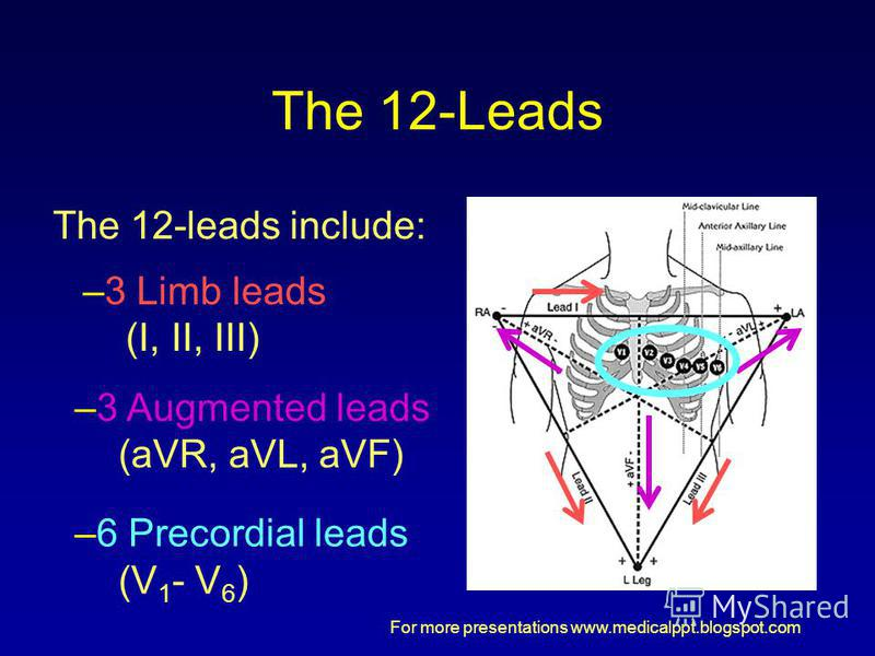 For more presentations www.medicalppt.blogspot.com The 12-Leads The 12-leads include: –3 Limb leads (I, II, III) –3 Augmented leads (aVR, aVL, aVF) –6 Precordial leads (V 1 - V 6 )