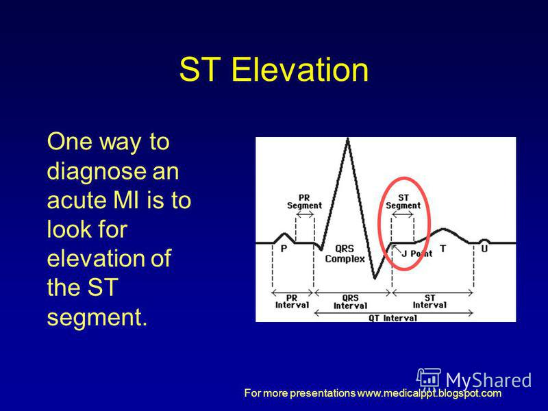 For more presentations www.medicalppt.blogspot.com ST Elevation One way to diagnose an acute MI is to look for elevation of the ST segment.