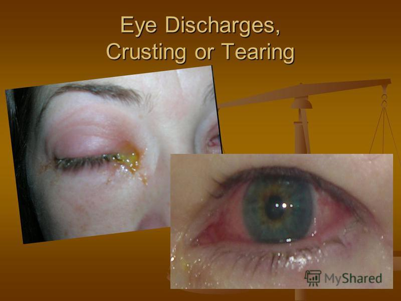 Eye Discharges, Crusting or Tearing