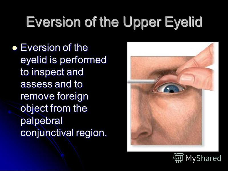 Eversion of the Upper Eyelid Eversion of the eyelid is performed to inspect and assess and to remove foreign object from the palpebral conjunctival region.