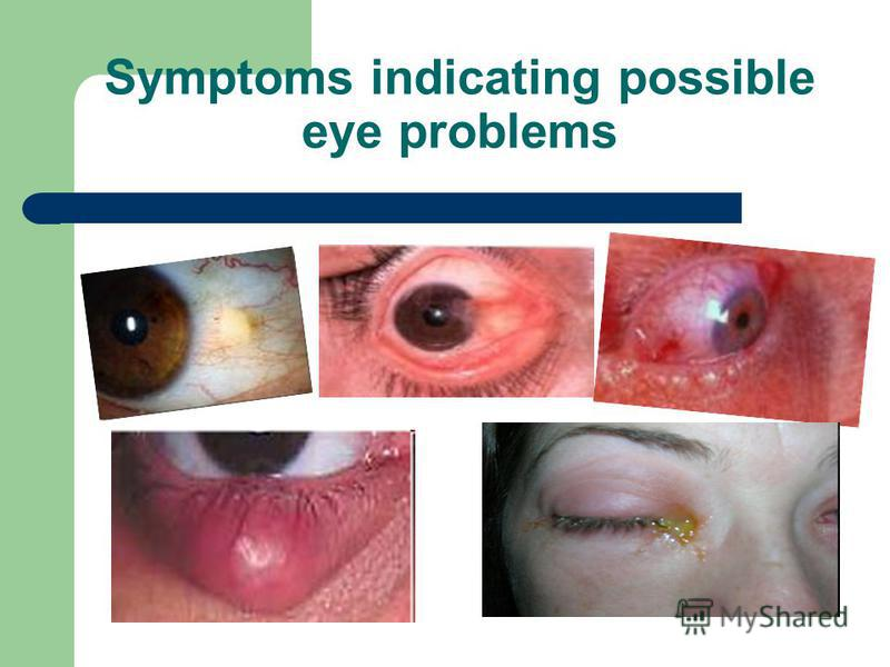 Symptoms indicating possible eye problems
