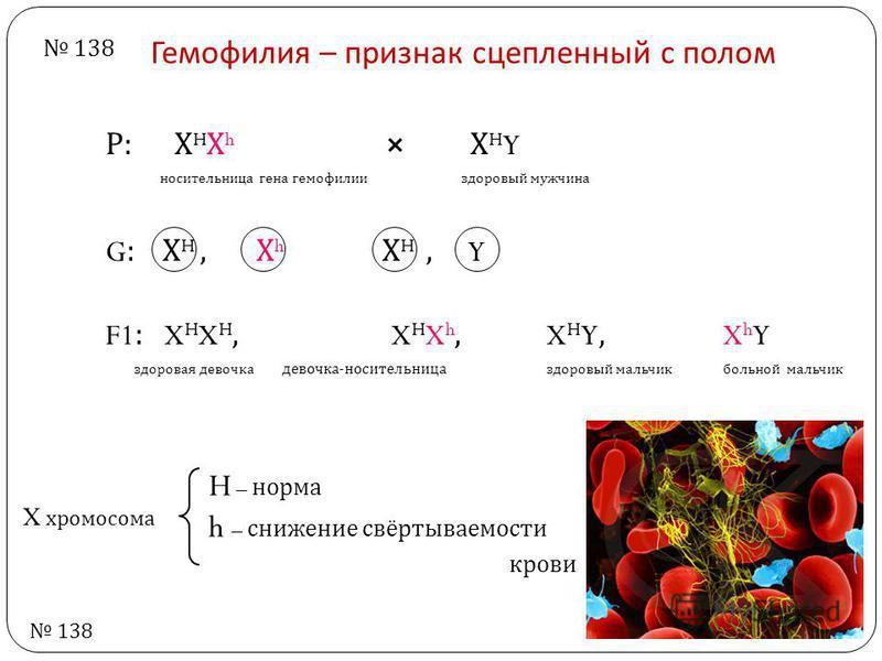 Гемофилия – признак сцепленный с полом Р : Х H Х h Х H Y носительница гена гемофилии здоровый мужчина G: Х H, Х h Х H, Y F1: X H X H, X H X h, X H Y, X h Y здоровая девочка девочка - носительница здоровый мальчик больной мальчик H – норма h – снижени