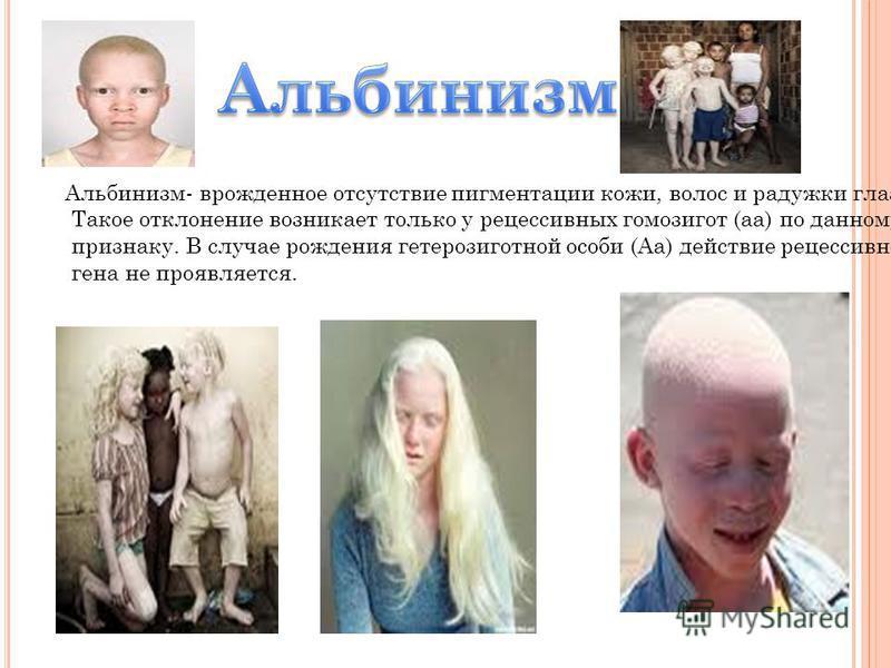 Альбинизм- врожденное отсутствие пигментации кожи, волос и радужки глаза. Такое отклонение возникает только у рецессивных гомозигот (а) по данному признаку. В случае рождения гетерозиготной особи (Аа) действие рецессивного гена не проявляется.