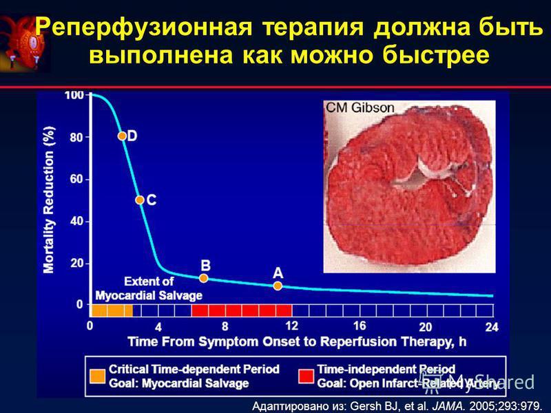 Реперфузионная терапия должна быть выполнена как можно быстрее Адаптировано из: Gersh BJ, et al. JAMA. 2005;293:979.