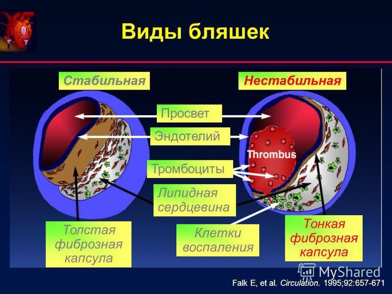 Виды бляшек Falk E, et al. Circulation. 1995;92:657-671 Стабильная Нестабильная Толстая фиброзная капсула Тонкая фиброзная капсула Тромбоциты Липидная сердцевина Клетки воспаления Эндотелий Просвет