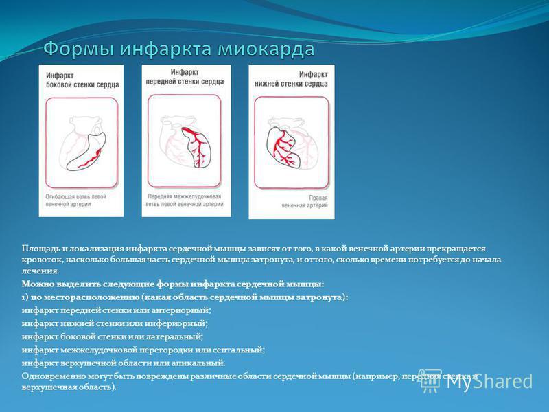 Площадь и локализация инфаркта сердечной мышцы зависят от того, в какой венечной артерии прекращается кровоток, насколько большая часть сердечной мышцы затронута, и оттого, сколько времени потребуется до начала лечения. Можно выделить следующие формы