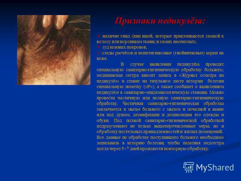 Признаки педикулёза: наличие гнид (яиц вшей, которые приклеиваются самкой к волосу или ворсинкам ткани; и самих насекомых; зуд кожных покровов; следы расчёсов и импетигинозные (гнойничковые) корки на коже. В случае выявления педикулёза проводят специ