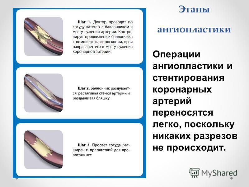 Этапы ангиопластики Операции ангиопластики и стентирования коронарных артерий переносятся легко, поскольку никаких разрезов не происходит.