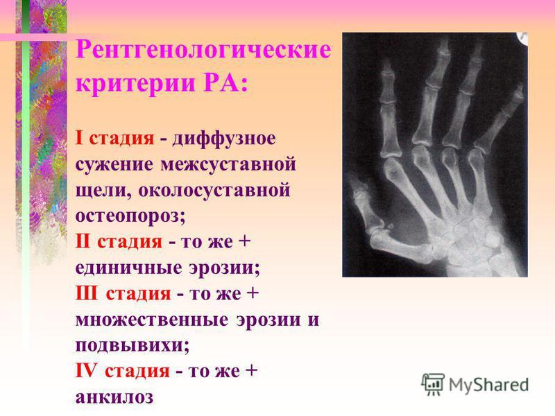 Рентгенологические критерии РА: І стадия - диффузное сужение межсуставной щели, околосуставной остеопороз; ІІ стадия - то же + единичные эрозии; ІІІ стадия - то же + множественные эрозии и подвывихи; ІV стадия - то же + анкилоз