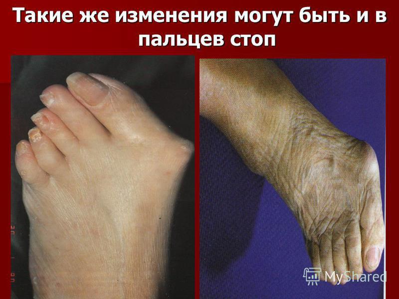 Такие же изменения могут быть и в пальцев стоп