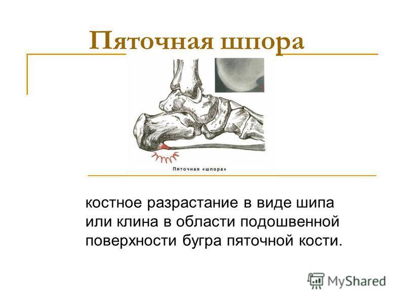 Пяточная шпора костное разрастание в виде шипа или клина в области подошвенной поверхности бугра пяточной кости.