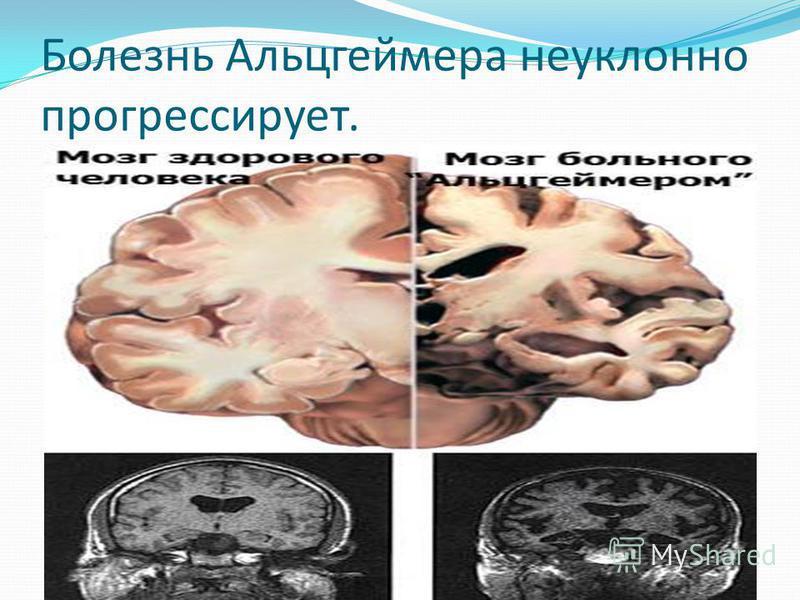 Болезнь Альцгеймера неуклонно прогрессирует.