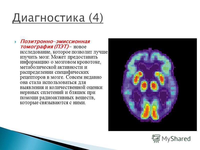 Позитронно-эмиссионная томография (ПЭТ) – новое исследование, которое позволит лучше изучить мозг. Может предоставить информацию о мозговом кровотоке, метаболической активности и распределении специфических рецепторов в мозге. Совсем недавно она стал