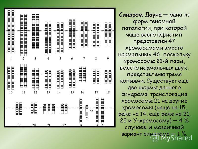 Синдром Дауна одна из форм геномной патологии, при которой чаще всего кариотип представлен 47 хромосомами вместо нормальных 46, поскольку хромосомы 21-й пары, вместо нормальных двух, представлены тремя копиями. Существует еще две формы данного синдро