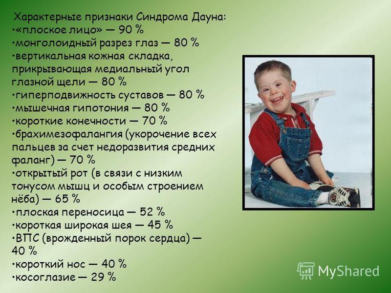 Характерные признаки Синдрома Дауна: «плоское лицо» 90 % монголоидный разрез глаз 80 % вертикальная кожная складка, прикрывающая медиальный угол глазной щели 80 % гиперподвижность суставов 80 % мышечная гипотония 80 % короткие конечности 70 % брахиме