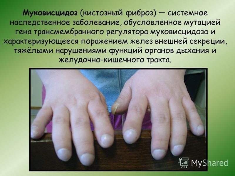 Муковисцидоз (кистозный фиброз) системное наследственное заболевание, обусловленное мутацией гена трансмембранного регулятора муковисцидоза и характеризующееся поражением желез внешней секреции, тяжёлыми нарушениями функций органов дыхания и желудочн