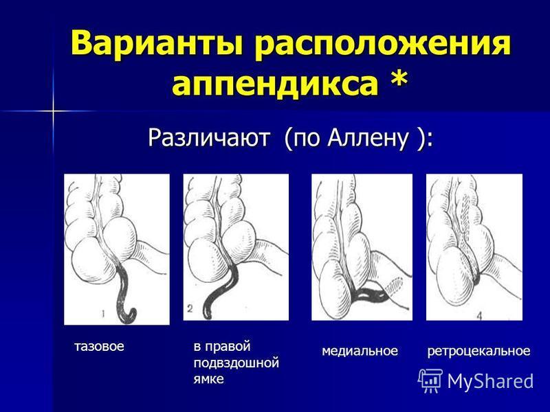 Варианты расположения аппендикса * Различают (по Аллену ): тазовое в правой подвздошной ямке медиальноеретроцекальное
