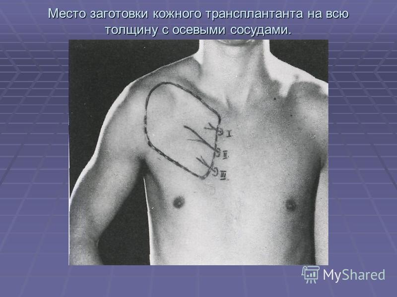 Место заготовки кожного трансплантата на всю толщину с осевыми сосудами.