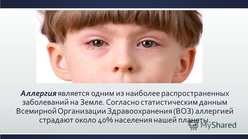 Аллергия является одним из наиболее распространенных заболеваний на Земле. Согласно статистическим данным Всемирной Организации Здравоохранения (ВОЗ) аллергией страдают около 40% населения нашей планеты.