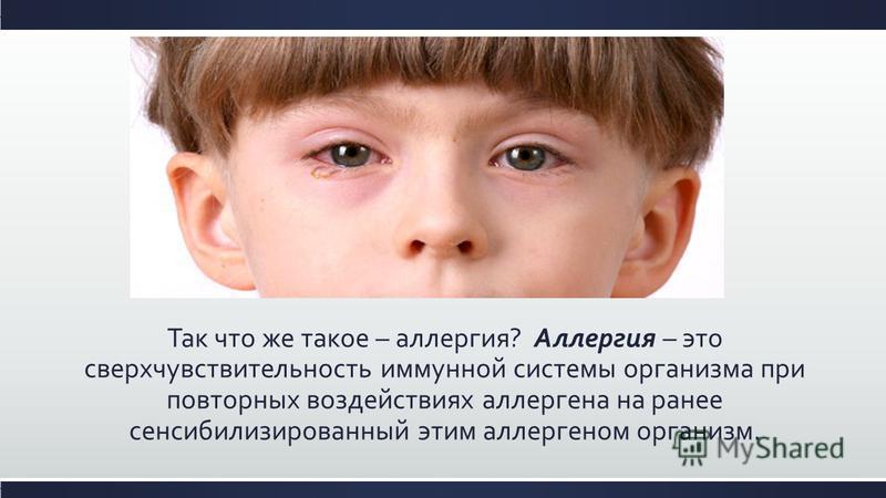Так что же такое – аллергия? Аллергия – это сверхчувствительность иммунной системы организма при повторных воздействиях аллергена на ранее сенсибилизированный этим аллергеном организм.