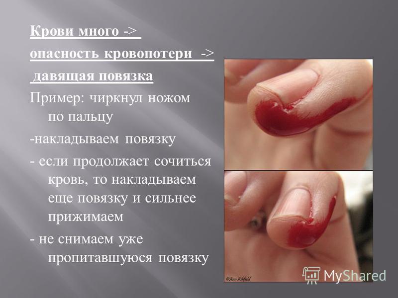 Крови много -> опасность кровопотери -> давящая повязка Пример : чиркнул ножом по пальцу - накладываем повязку - если продолжает сочиться кровь, то накладываем еще повязку и сильнее прижимаем - не снимаем уже пропитавшуюся повязку