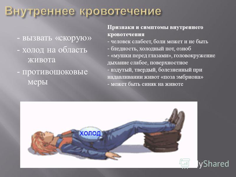 - вызвать « скорую » - холод на область живота - противошоковые меры Признаки и симптомы внутреннего кровотечения - человек слабеет, боли может и не быть - бледность, холодный пот, озноб - « мушки перед глазами », головокружение дыхание слабое, повер