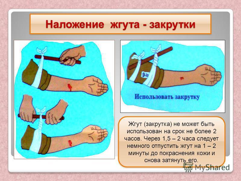 Наложение жгута - закрутки Жгут (закрутка) не может быть использован на срок не более 2 часов. Через 1,5 – 2 часа следует немного отпустить жгут на 1 – 2 минуты до покраснения кожи и снова затянуть его.