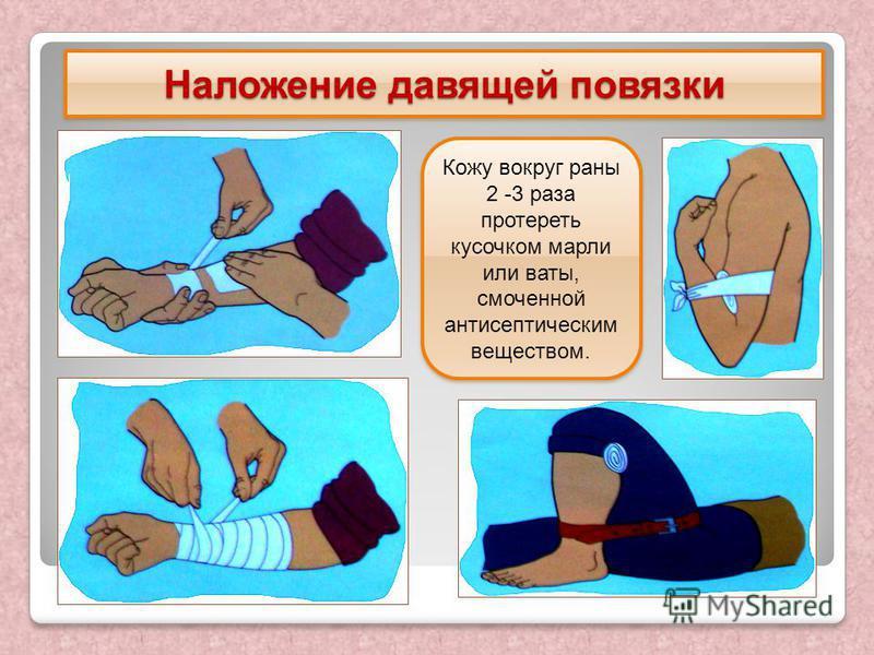 Наложение давящей повязки Кожу вокруг раны 2 -3 раза протереть кусочком марли или ваты, смоченной антисептическим веществом.