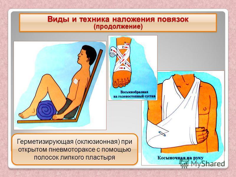 (продолжение) (продолжение) Герметизирующая (окклюзионная) при открытом пневмотораксе с помощью полосок липкого пластыря