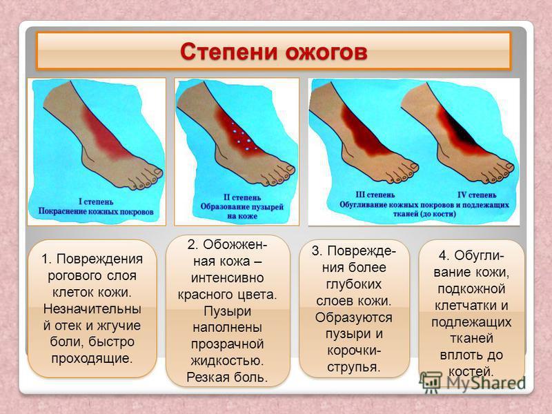 Степени ожогов 1. Повреждения рогового слоя клеток кожи. Незначительны й отек и жгучие боли, быстро проходящие. 2. Обожжен- ная кожа – интенсивно красного цвета. Пузыри наполнены прозрачной жидкостью. Резкая боль. 3. Поврежде- ния более глубоких слое
