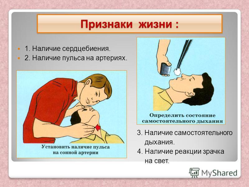 1. Наличие сердцебиения. 2. Наличие пульса на артериях. 3. Наличие самостоятельного дыхания. 4. Наличие реакции зрачка на свет. Признаки жизни :