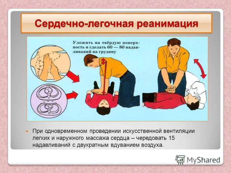 При одновременном проведении искусственной вентиляции легких и наружного массажа сердца – чередовать 15 надавливаний с двукратным вдуванием воздуха. Сердечно-легочная реанимация