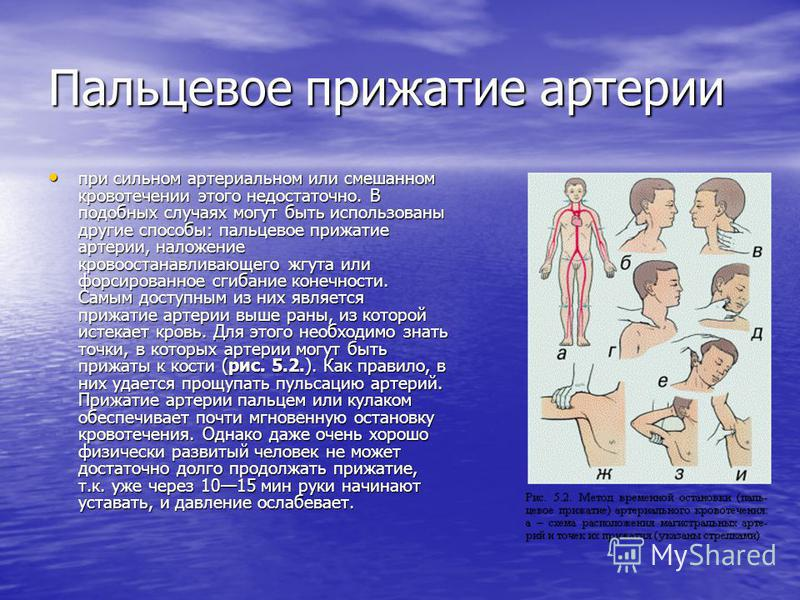 Для остановки кровотечения необходимо: а) поднять раненую конечность; а) поднять раненую конечность; б) кровоточащую рану закрыть перевязочным материалом из пакета, сложенным в комочек, и придавить ее сверху, не касаясь.пальцами самой.раны, на 4-5 ми