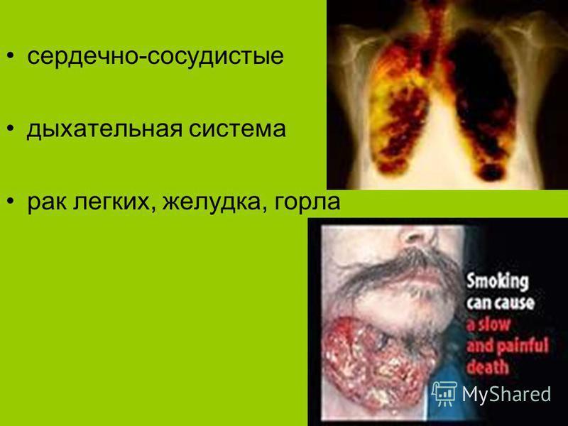 Заболевания курильщиков сердечно-сосудистые дыхательная система рак легких, желудка, горла