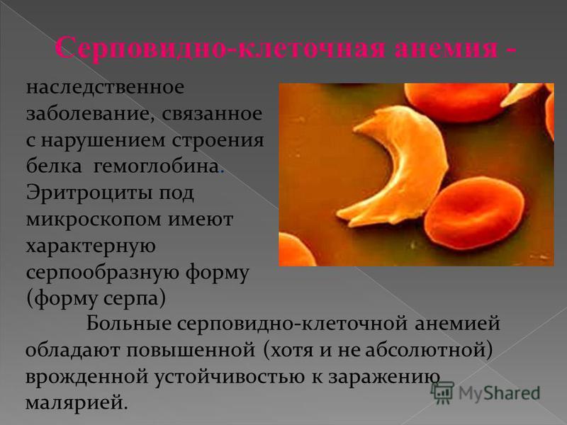 наследственное заболевание, связанное с нарушением строения белка гемоглобина. Эритроциты под микроскопом имеют характерную серпообразную форму (форму серпа) Больные серповидно-клеточной анемией обладают повышенной (хотя и не абсолютной) врожденной у