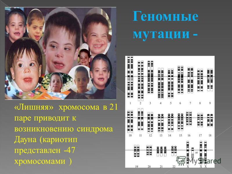 «Лишняя» хромосома в 21 паре приводит к возникновению синдрома Дауна (кариотип представлен -47 хромосомами )