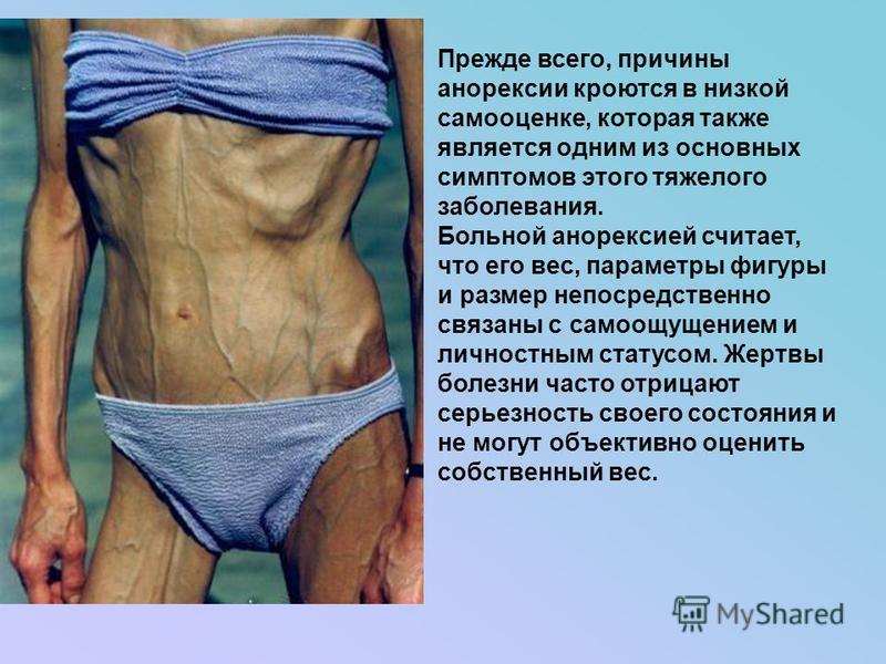 Прежде всего, причины анорексии кроются в низкой самооценке, которая также является одним из основных симптомов этого тяжелого заболевания. Больной анорексией считает, что его вес, параметры фигуры и размер непосредственно связаны с самоощущением и л