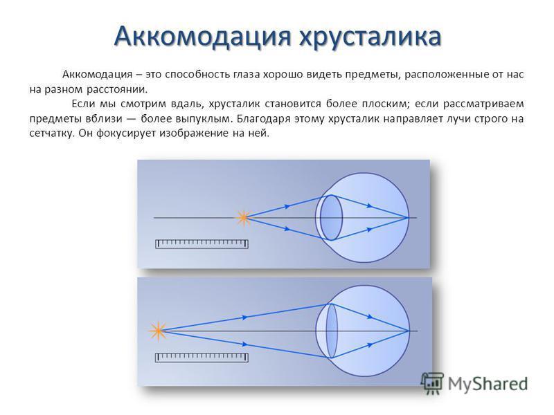 Аккомодация хрусталика Аккомодация – это способность глаза хорошо видеть предметы, расположенные от нас на разном расстоянии. Если мы смотрим вдаль, хрусталик становится более плоским; если рассматриваем предметы вблизи более выпуклым. Благодаря этом