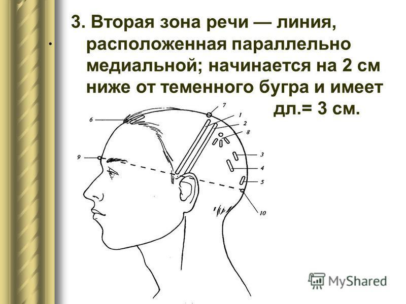 . 3. Вторая зона речи линия, расположенная параллельно медиальной; начинается на 2 см ниже от теменного бугра и имеет дл.= 3 см.