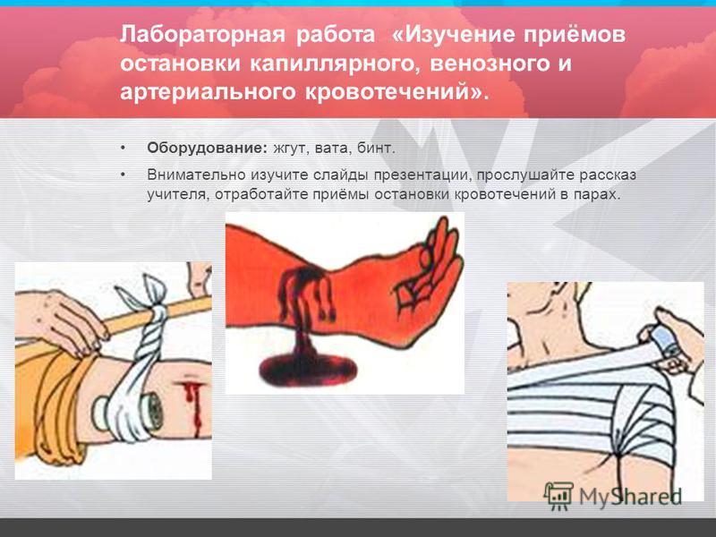 Лабораторная работа «Изучение приёмов остановки капиллярного, венозного и артериального кровьтечений». Оборудование: жгут, вата, бинт. Внимательно изучите слайды презентации, прослушайте рассказ учителя, отработайте приёмы остановки кровьтечений в па