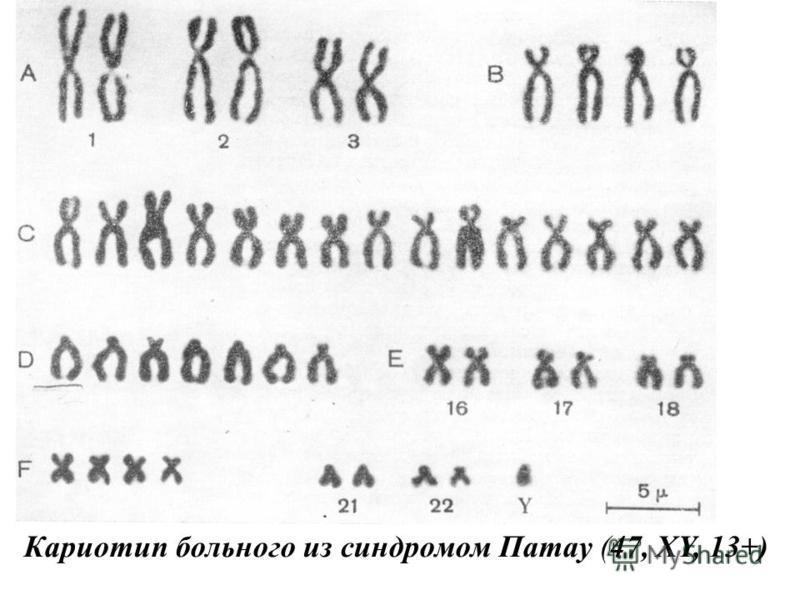 Кариотип больного из синдромом Патау (47, XY, 13+)