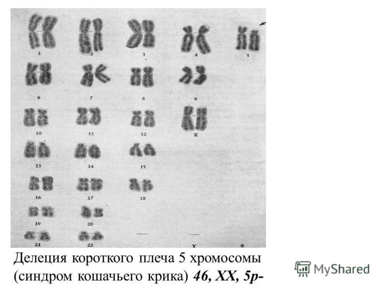 Делеция короткого плеча 5 хромосомы (синдром кошачьего крика) 46, XX, 5p-